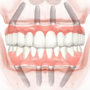 all on 4 dental implants cost in india, Melbourne, Sydney, Brisbane, Australia Smile in Hour